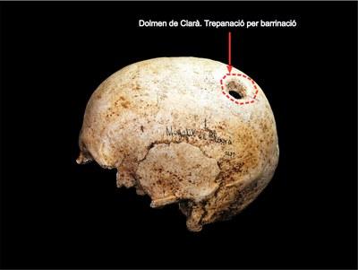 Crani trepanat Clarà
